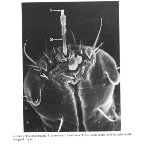 electron micrograph of crab lice